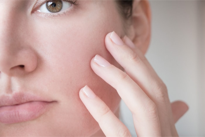 毛穴の白い脂・角栓は予防できる毛穴トラブルです