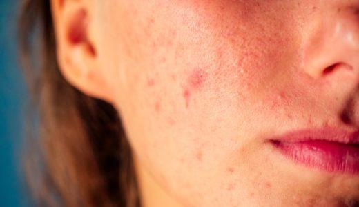 炎症後色素沈着とは?原因とケア方法をご紹介
